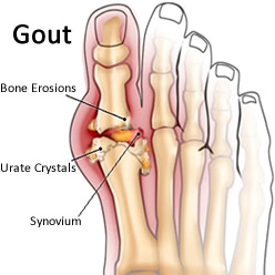 natural remedies for gout - gout image