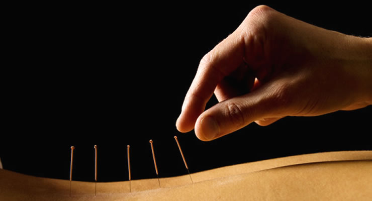 Benefits Of Acupuncture - article head image